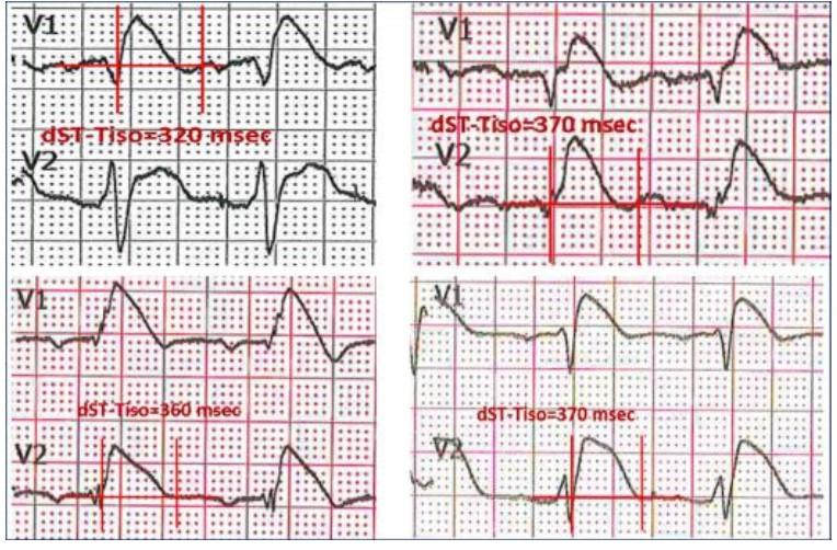 Un elettrocardiogramma con aspetto tipico dST-Tiso